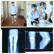 人工膝关节置换 7旬老人摆脱疼痛